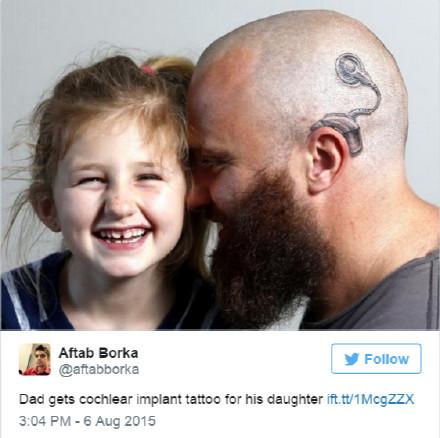 因为6岁的女儿左耳戴了人工耳蜗,为了配合女儿,表达对她的支持和爱,这位叫 Alistair Campbell 的爸爸剃光了自己的头发,还在左耳纹了一个耳