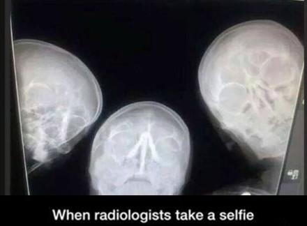 放射科医生也玩自拍=.= 他们需要神经科医生的帮助了...