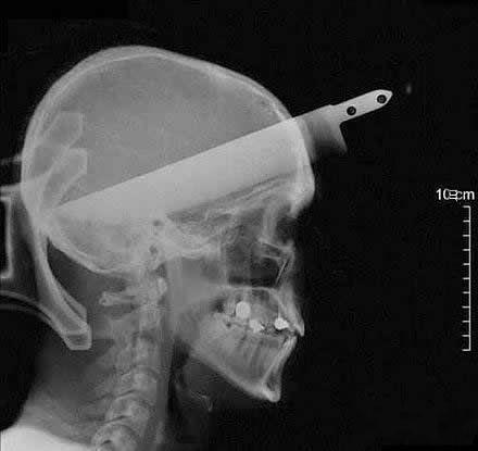 难道是上帝和他开了一个玩笑? 一位精神分裂症患者自杀未遂后在医院拍的头部X光片
