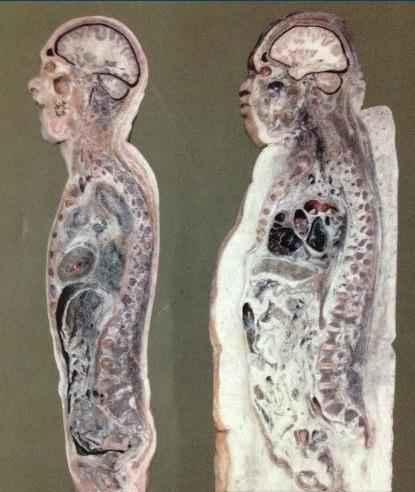 想知道您体内的脂肪都长哪里了吗?请看下图!