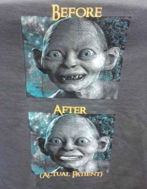 据传闻这是某牙医诊所的宣传T恤……