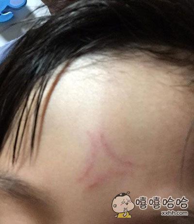 妈妈表示,儿子摔了一跤,额头上的伤看起来很生气的样子