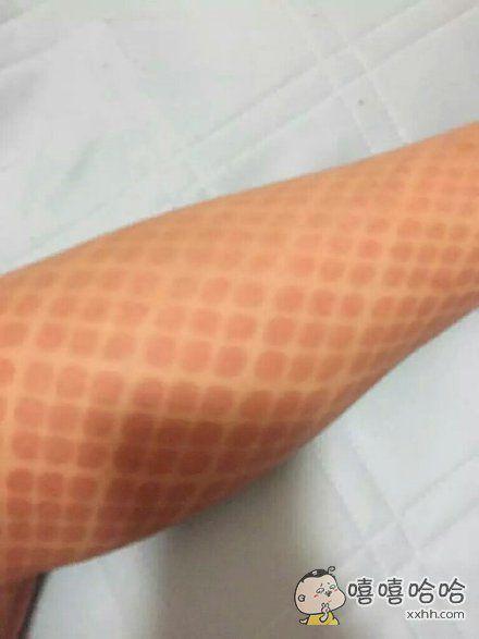 夏天穿网袜的后果。。。
